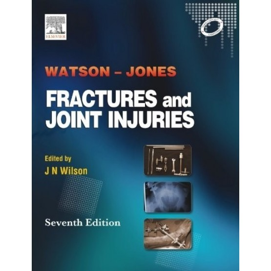 Fractures and Joint Injuries Jones