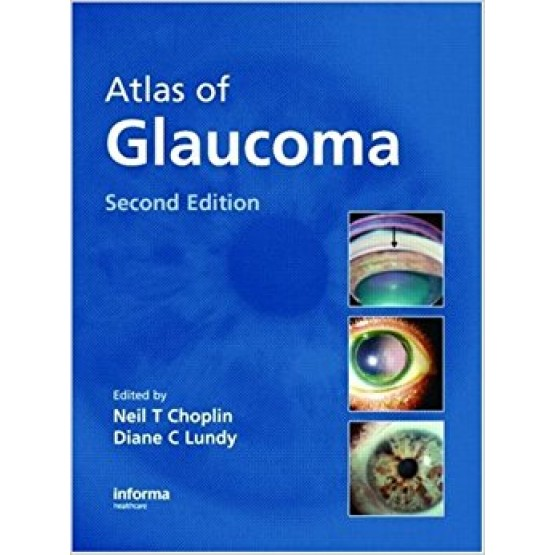 Atlas of Glaucoma Second Edition