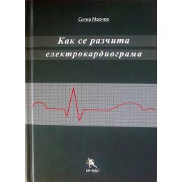 Как се разчита електрокардиограма Марчев